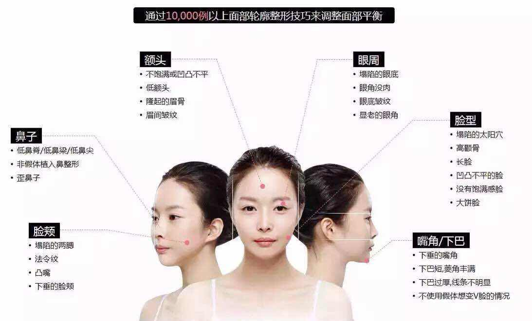 面部轮廓整形包括哪些?