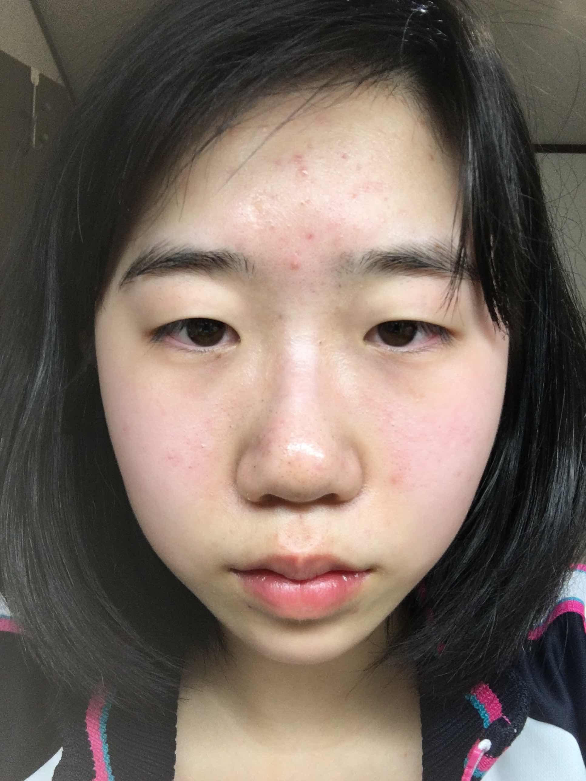 上眼皮提升矫正术好不好,大家好。我想问一下 整哪些地方才能变得更漂亮