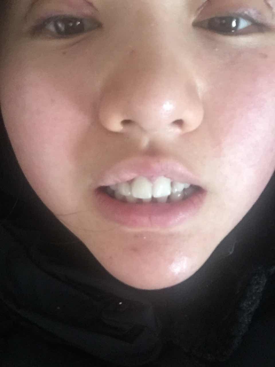 牙齿不对称怎么办,我的牙齿怎么整?门牙开始往左数,全是假呀。而且不对称。怎么整啊。
