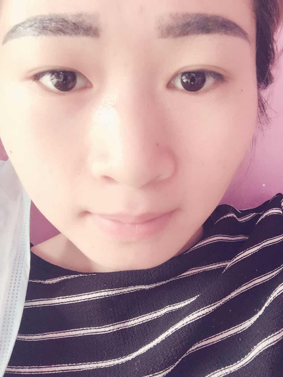 韩式综合美鼻怎么样,亲们给点建议……我那些地方要整的^_^
