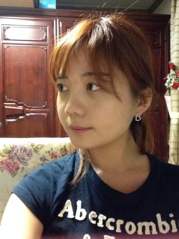 韩国改脸型手术,脸上肉肉的,而且棱角分明,整个面部看起来有点像多角形,一点也也不淑女,美佳V脸手术,变成小小瘦脸