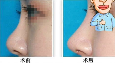 取耳软骨隆鼻尖怎么样,耳朵会不会改变形态?取耳廓软骨来隆鼻尖,手术在耳廓内侧缘做小切口,切口隐藏在耳后,位置隐蔽