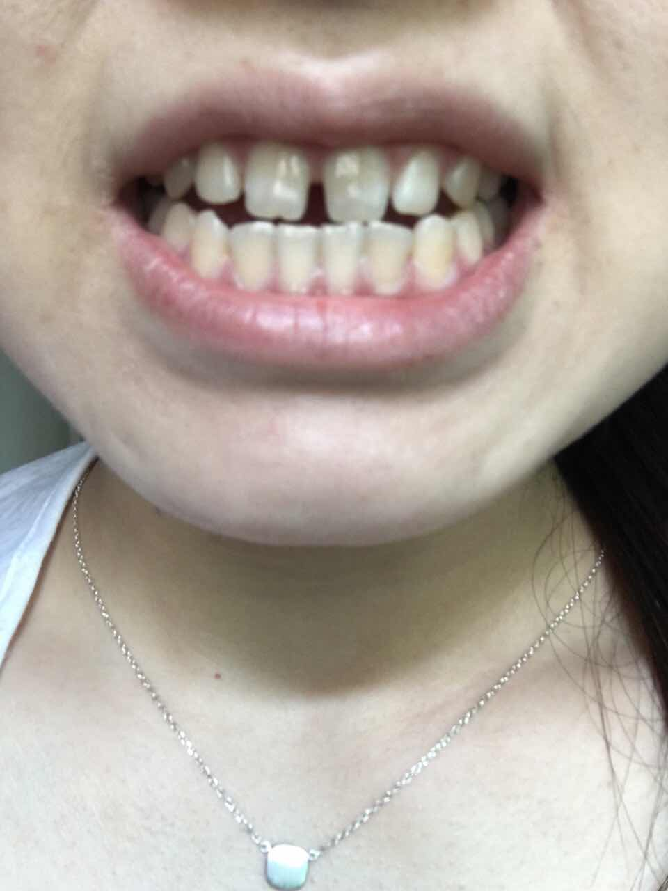 牙齿间距大怎么办,牙齿又黄,牙间距无比宽,怎么办怎么办怎么办啊是要矫正还是做烤瓷牙啊郁闷