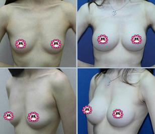 隆胸假体形状有几种,北京莫琳娜医疗整形美容假体隆胸,不止要变大变挺,乳沟也很重要。