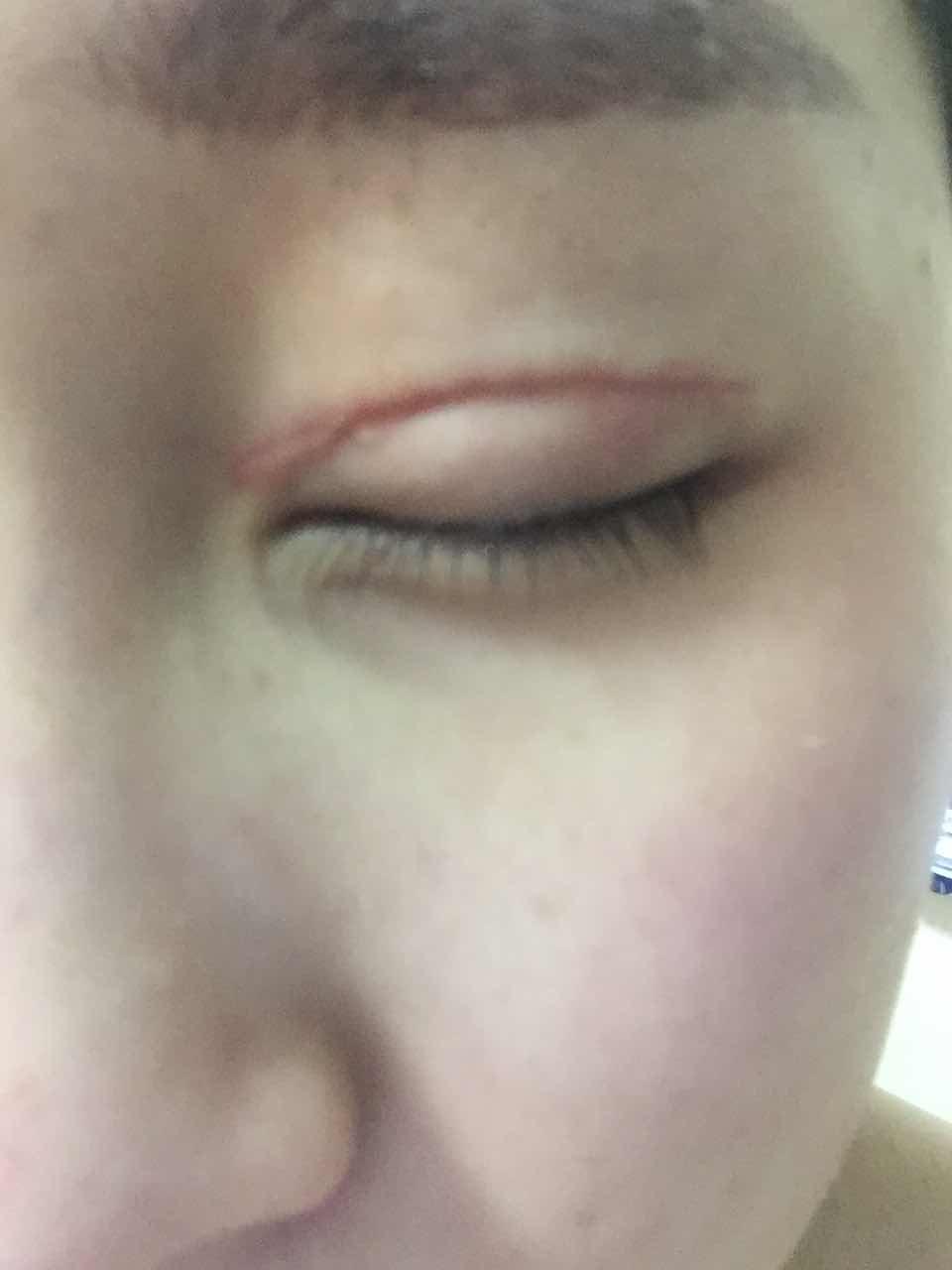 双眼皮术后增生怎么办,4月1日在韩国原辰医院进行了双眼皮全切,开后眼角,眼部提肌手术,现在已经一个月了,眼头处有一大块凸起的硬硬的疤痕,是增生吗?
