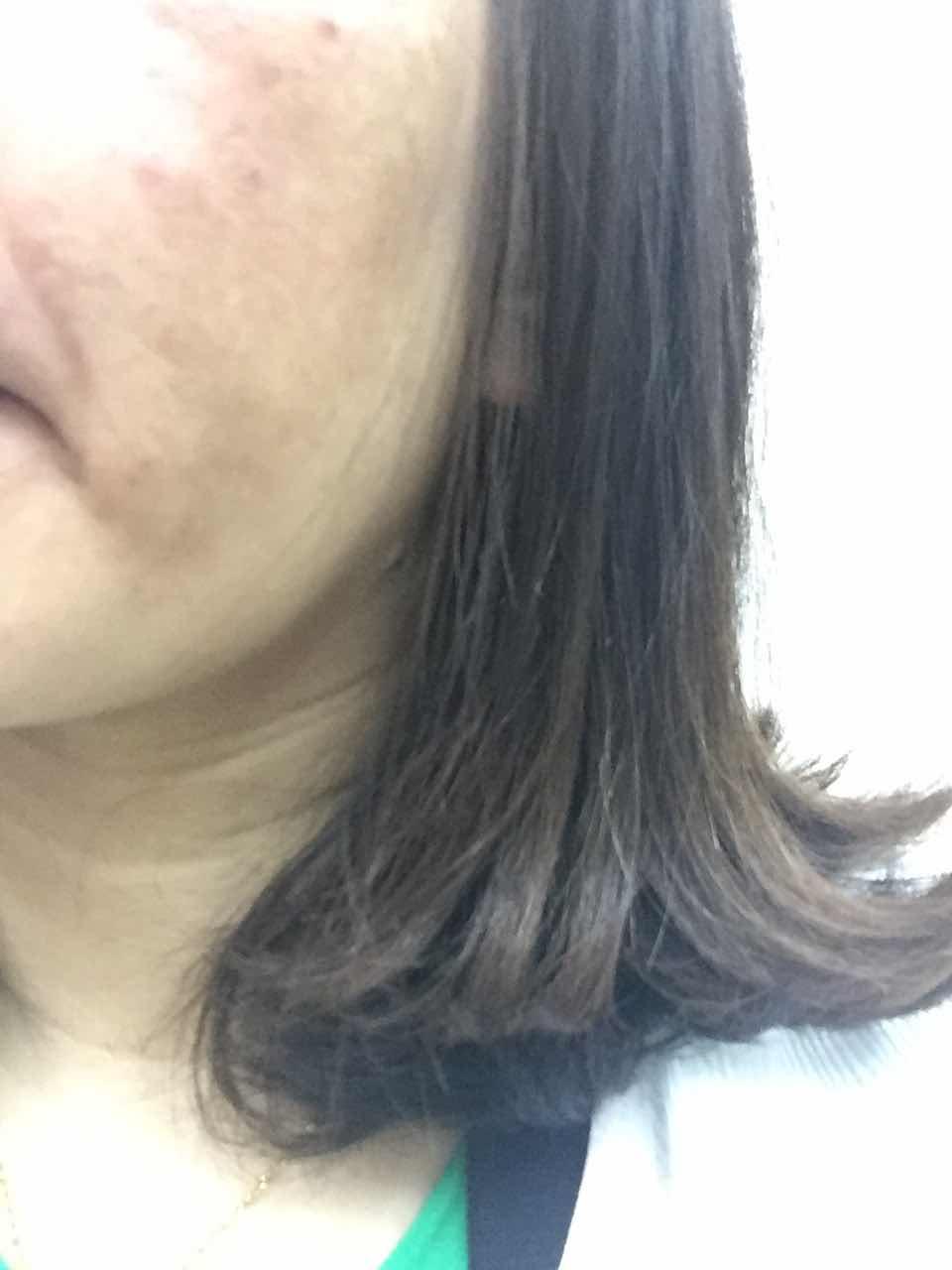 黄褐斑怎么去除,黄褐斑可以治疗吗,用那种方法良好