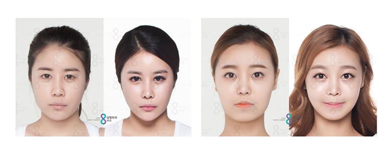 自体脂肪移植专家,脂肪移植是让面部更加立体、小巧玲珑的法宝