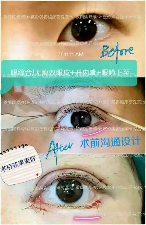 纳米无痕双眼皮的原理,无痕明星双眼皮 目前国内只有两人会做,一位是我院的孟院长 ,一位是北京的王医生,重点是三天就可以拆线