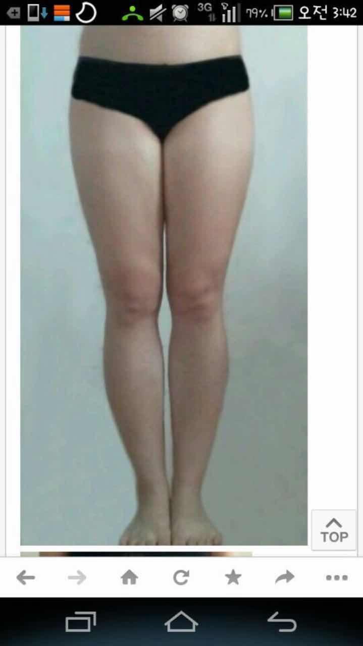 腿部美白怎么办,腿部晒的很黑,应该怎么做