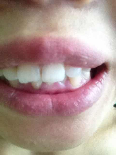 牙齿矫正一般多少钱,想问下牙齿矫正大概多少钱,快26了 嘴唇好厚 可以怎么弄呢,多少钱呢