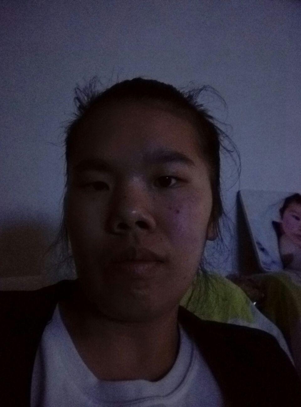 植发际线后脸会肿吗,请大家帮我看看,我改该怎样打扮自己