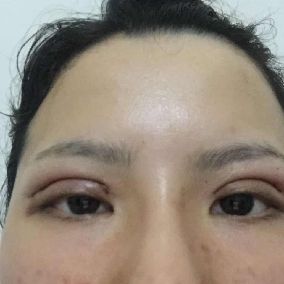 割双眼皮恢复不一样,还是比较明显的,应该怎么整