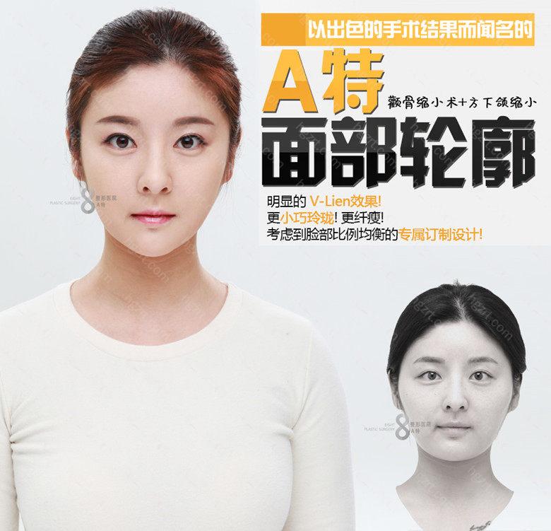 韩国A特整形医院帮您塑造自然柔和顺滑V脸