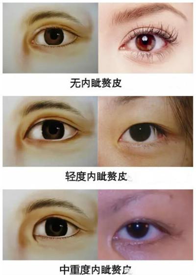 近视眼可以做开眼角吗?【近视度数在600-700度,想开内眼角,会影响视力吗?】开眼角