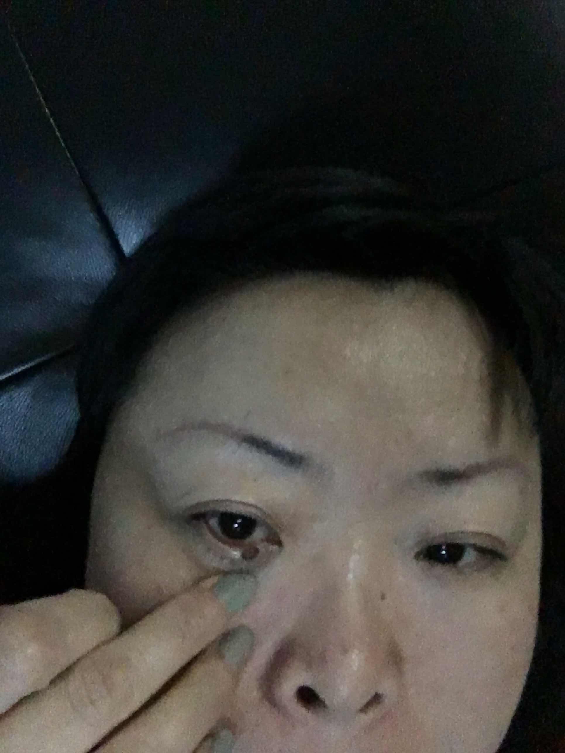 眼皮底下长了一黑痣怎么办,眼皮底下的这个痣可以点吗?用什么方法良好 需要先看眼科吗