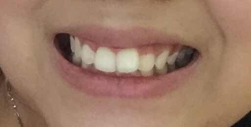 不带牙套怎么矫正牙齿,我门牙有点问题,马上24岁了,不愿意戴牙套嫌太折腾,但是有感觉影响美观,怎么办