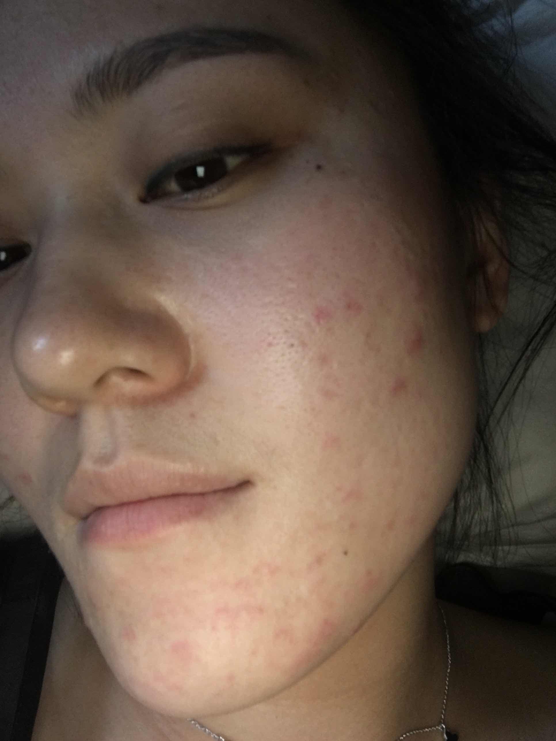什么是闭合性粉刺图片,脸上老是长痘痘怎么办啊!不知道是不是闭合性粉刺
