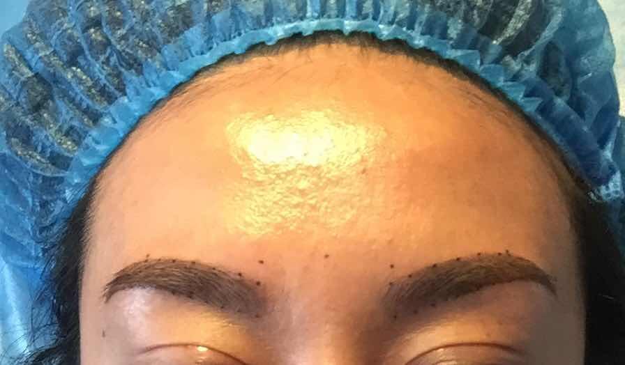 雾眉是怎么做的,设计中…,开眼角双眼皮恢复期后,准备设计眉毛…本人眉尾断毛发…