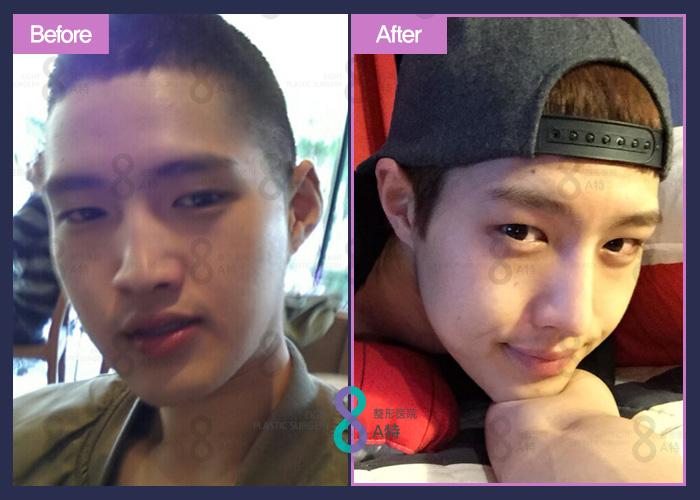 韩式隆鼻前后对比照,韩式隆鼻手术,自然高挺鼻型在A特拥有