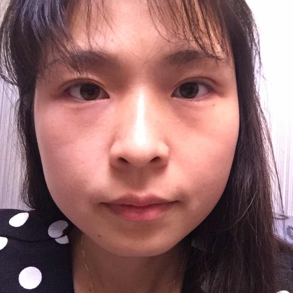 韩式三点双眼皮恢复图,韩式三点一个半月  掉了一针  一个月之后补的  现在补了一大一小  补的小  而且双眼皮也变隐双  这个是失败吗  要修复吗