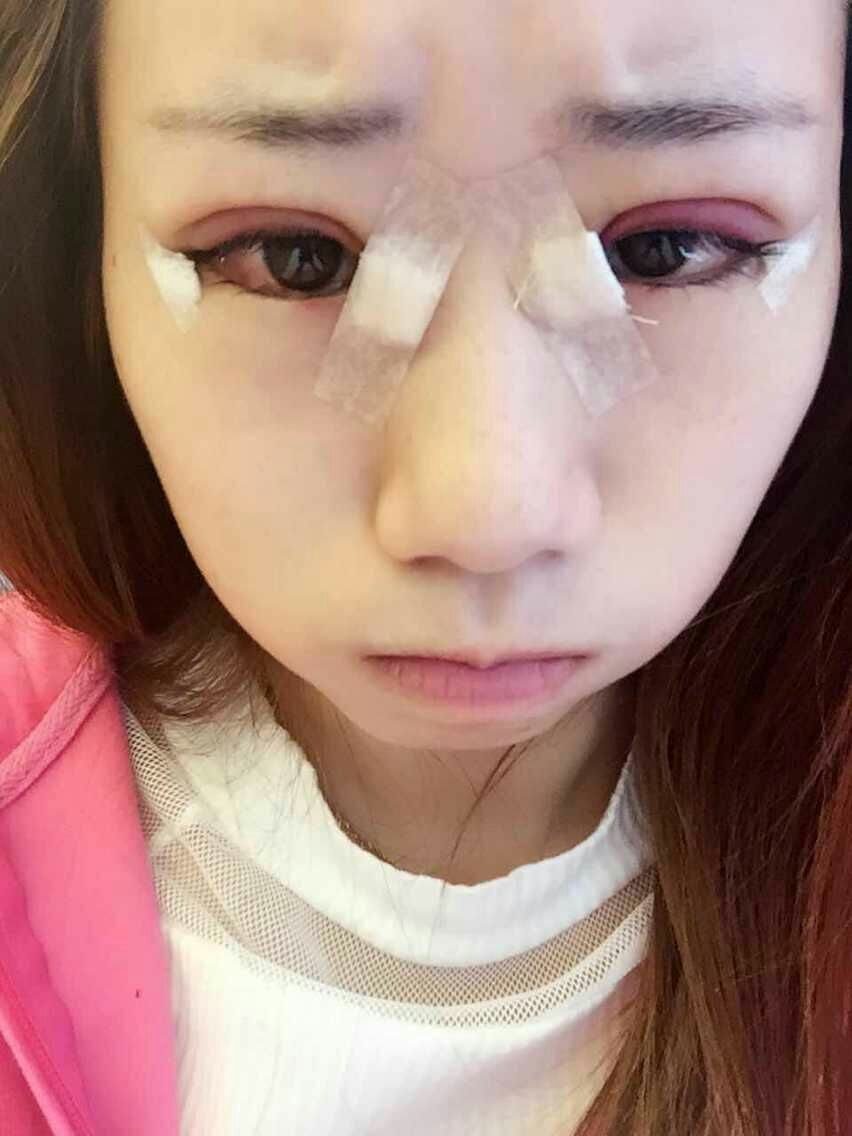 做了眼综合:双眼皮手术和开眼角手术一起做了,手术前