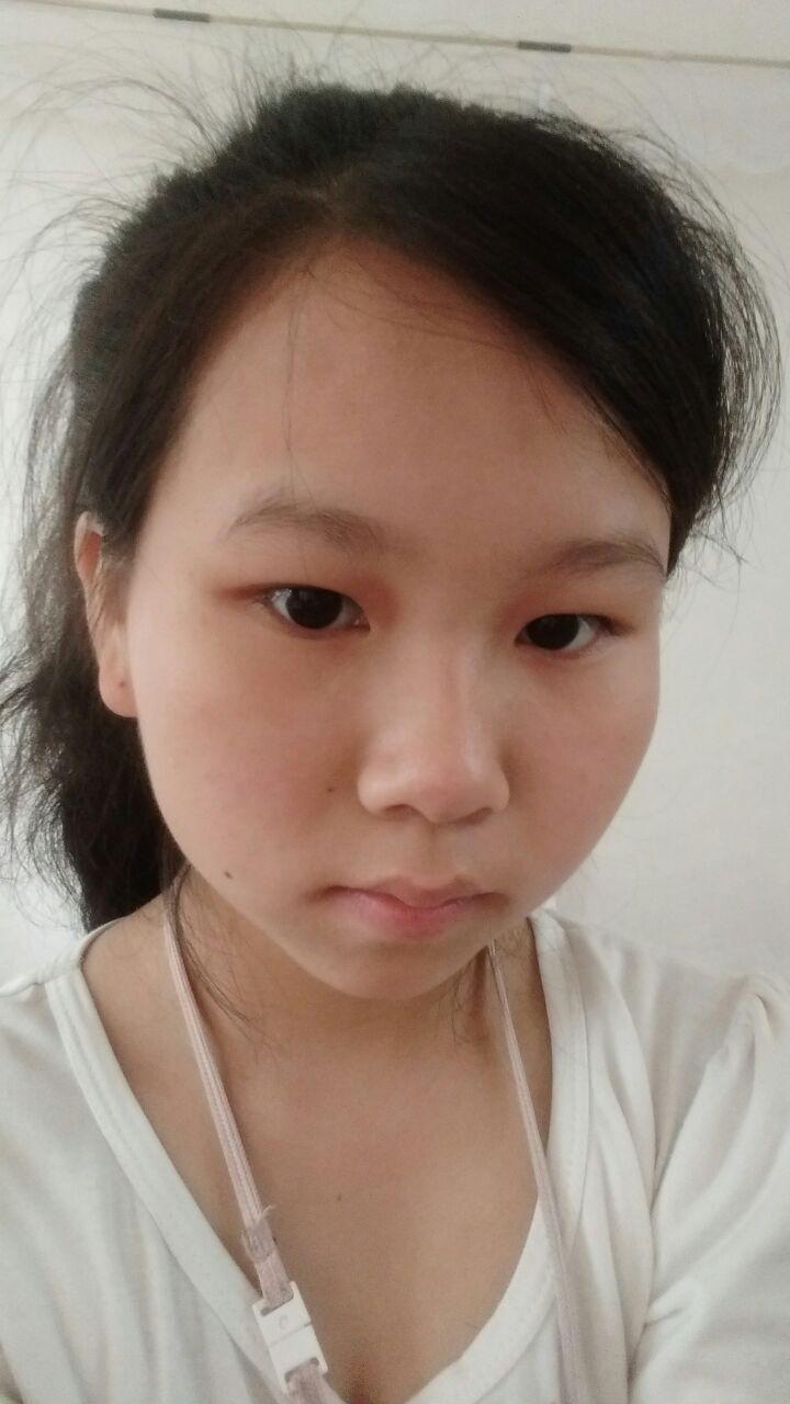 你真的适合做欧式双眼皮吗?眼睛好小的说