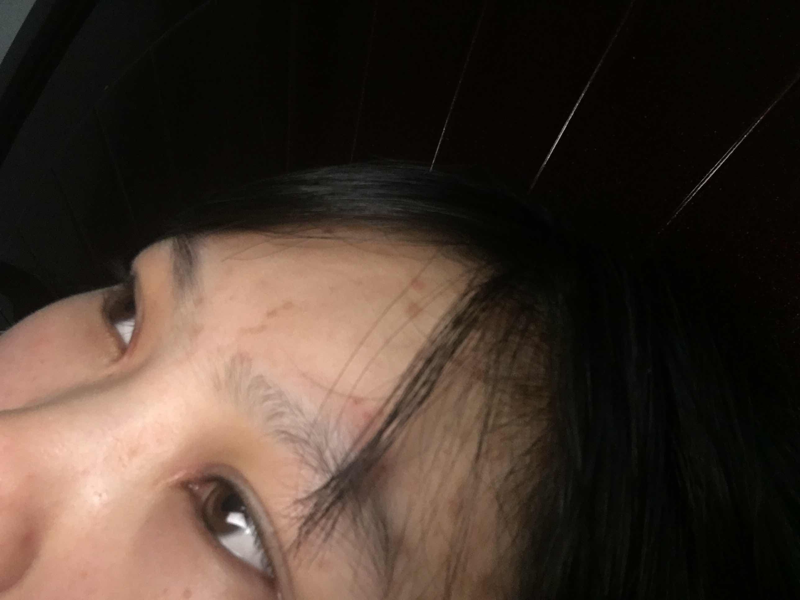 肿眼泡是怎么吸脂的?上眼皮吸脂 一个月了 还没有消肿 什么时候能消肿 怎么快速恢复