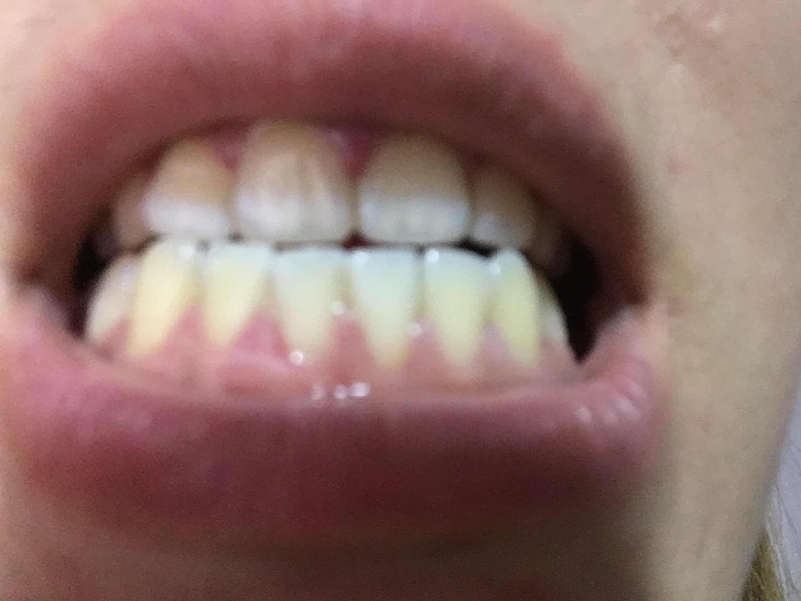 你的牙齿准备激光美白了吗?准备开始美白牙齿