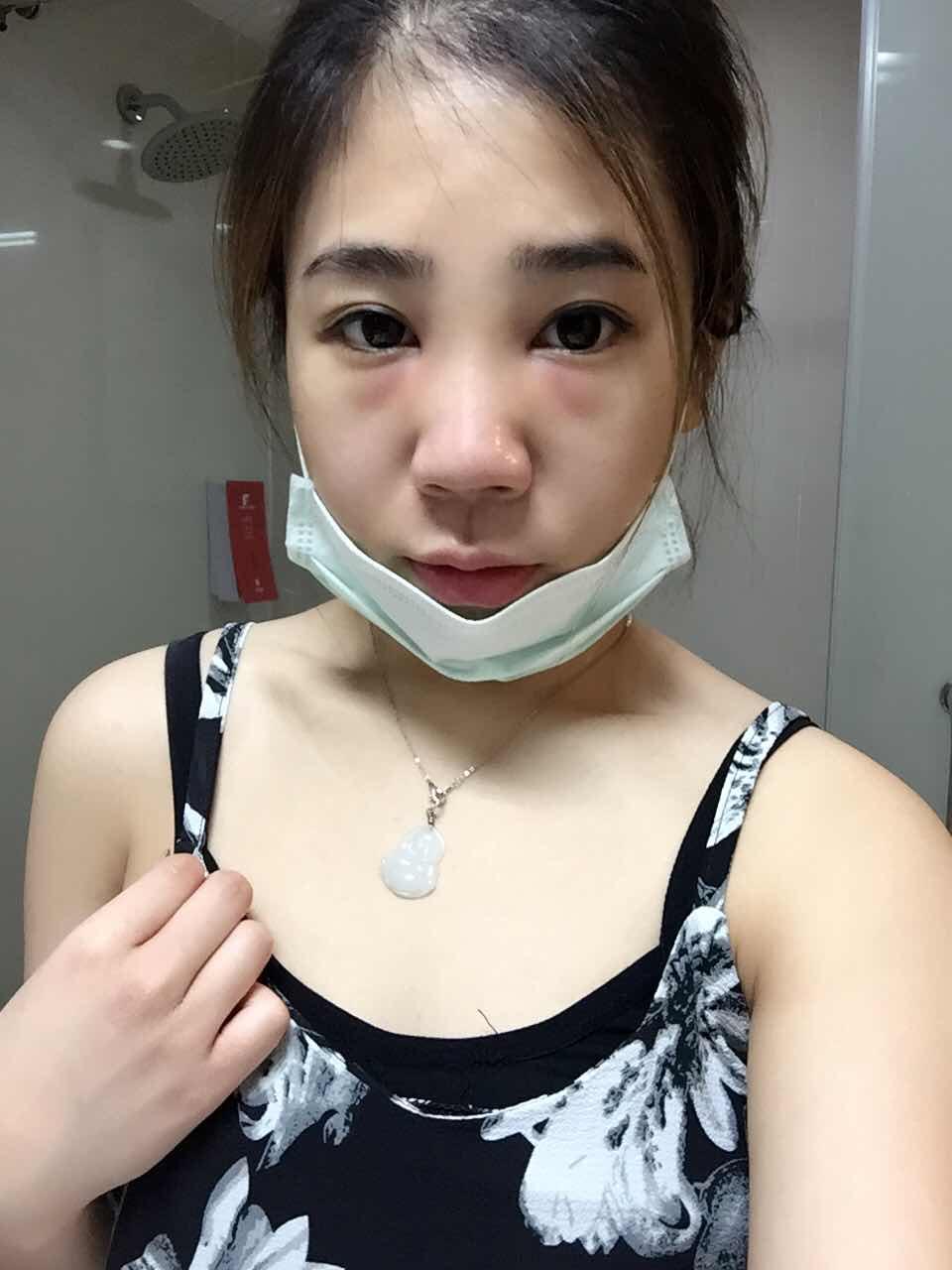 假体隆鼻后如何快速消肿?假体隆鼻第二天。。。。好肿的脸颊!哈哈,看起来是不是很心塞