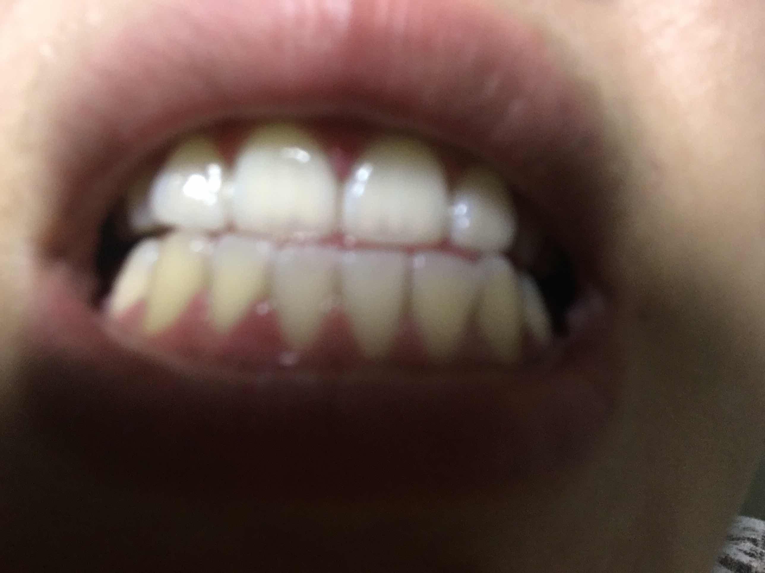 激光牙齿美白术效果怎么样?用的家用美白仪first次牙齿美白根本没有效果