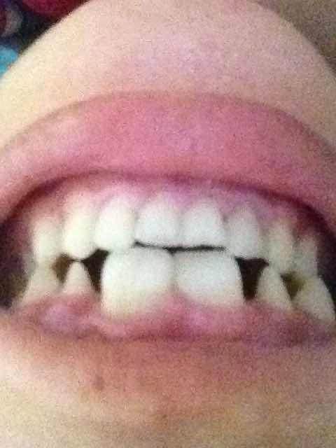 烤瓷牙与种植牙哪个好?请问这种情况应该做哪种?大概费用多少?