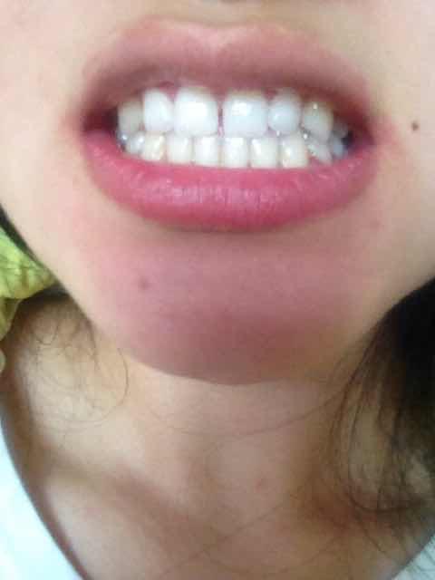牙龈退缩、牙缝变大怎么办?帮忙看看,需不需要矫正啊!!