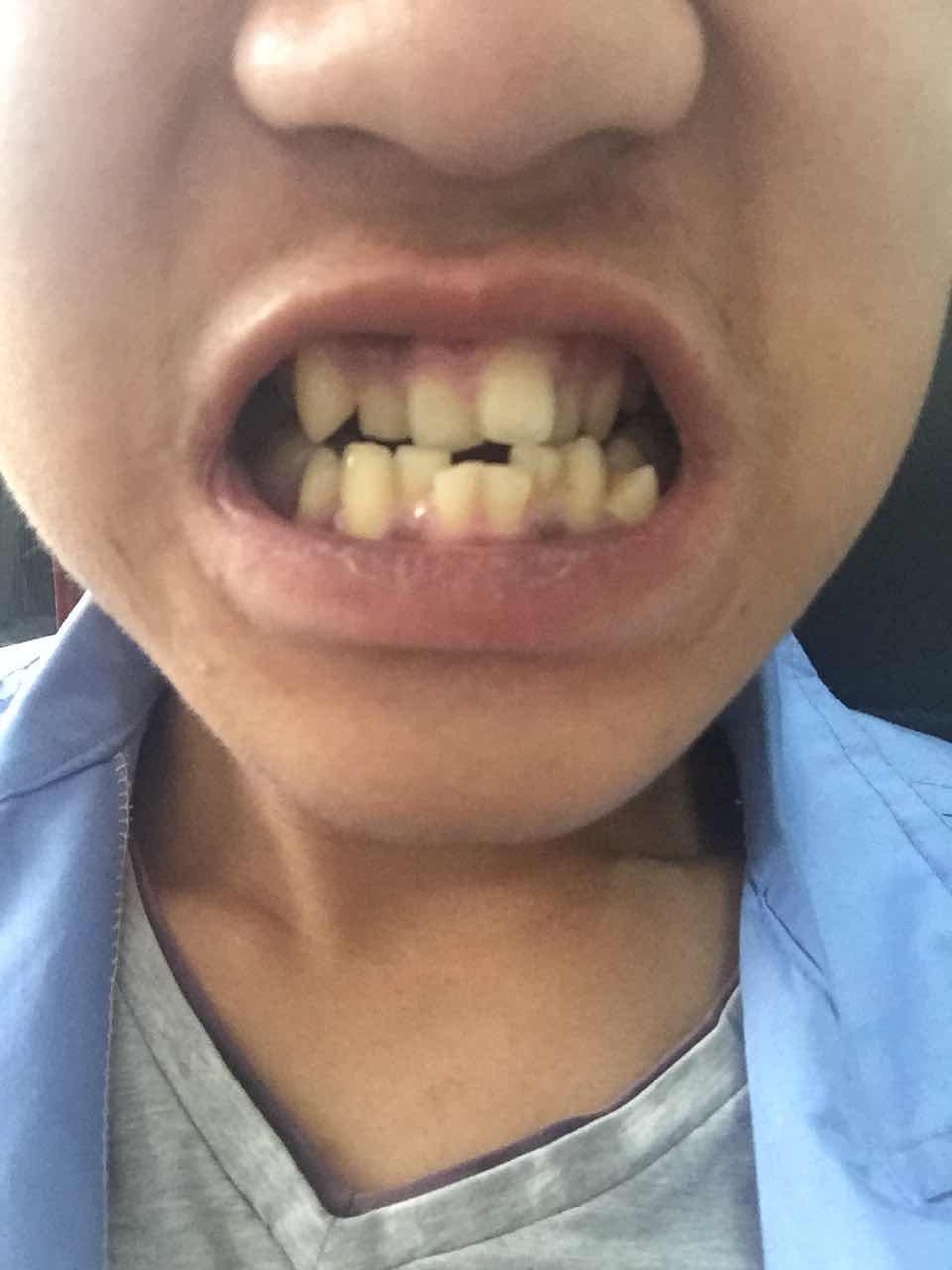 牙齿不齐不矫正的危害有哪些?牙齿不齐就想把门牙整齐了大约得花多少钱