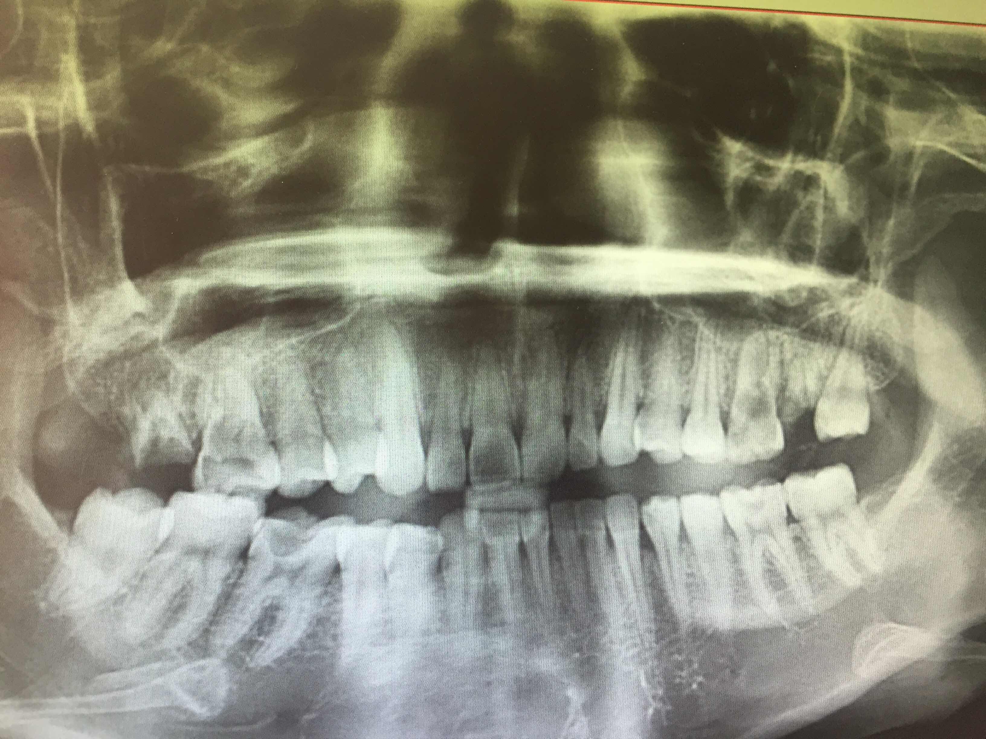 年轻人做种植牙效果怎样?今天牙齿拍了个片,医生说下面两颗做针管治疗,上面四颗都需要拔掉,怎么办好呢?给点意见吧