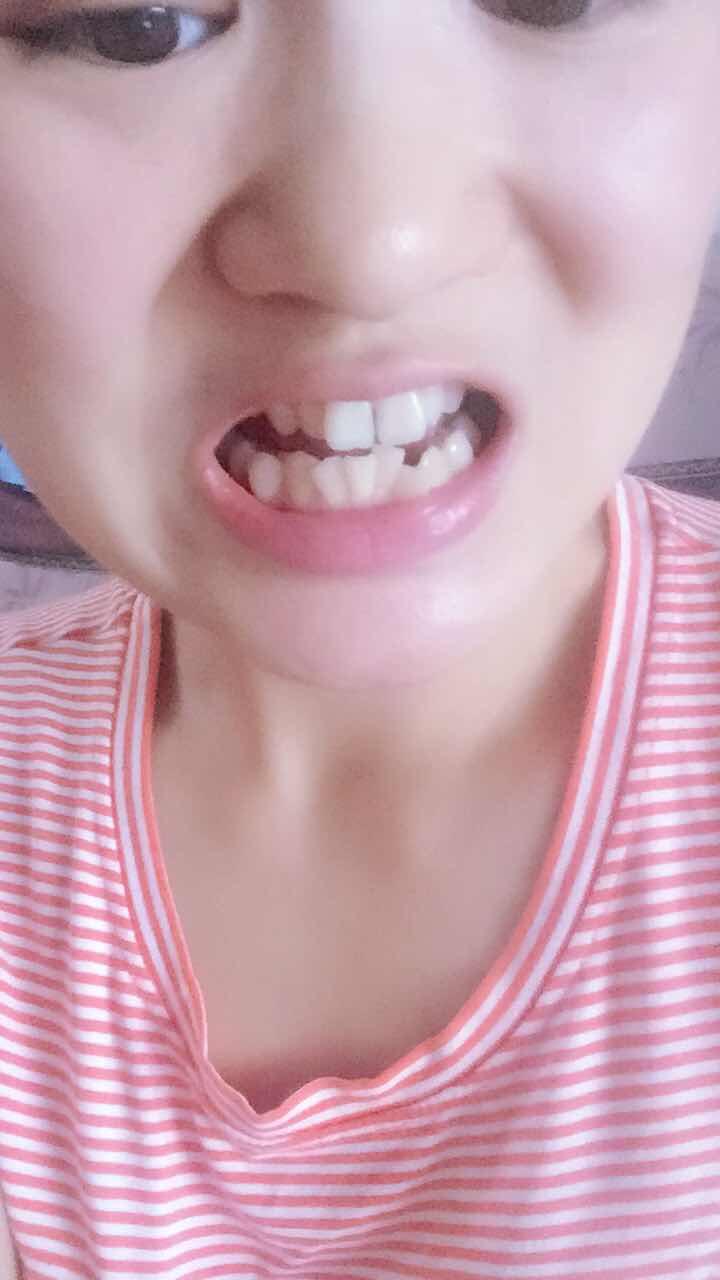 牙齿不齐做美容冠修复效果怎么样 想了解下我这种矫正牙齿需要多少钱,好长时间能恢复好