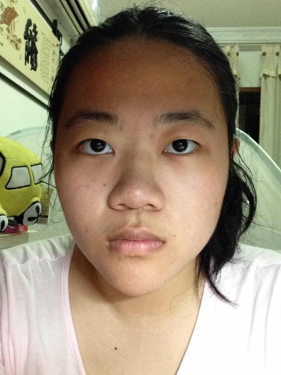 鼻尖整形的手术方法有哪些?大家都说我像牛魔王我好憋屈。