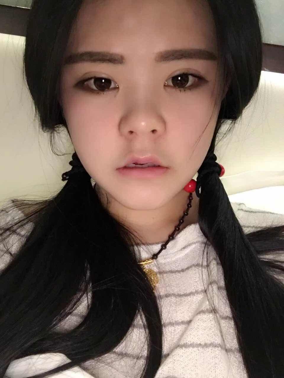 韩式隆鼻手术后饮食如何控制,有没有什么特别禁忌之类的?