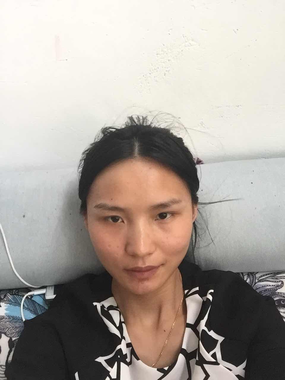 激光治疗伤疤的效果如何?我哪里要整啊?皮肤凹疤能治吗