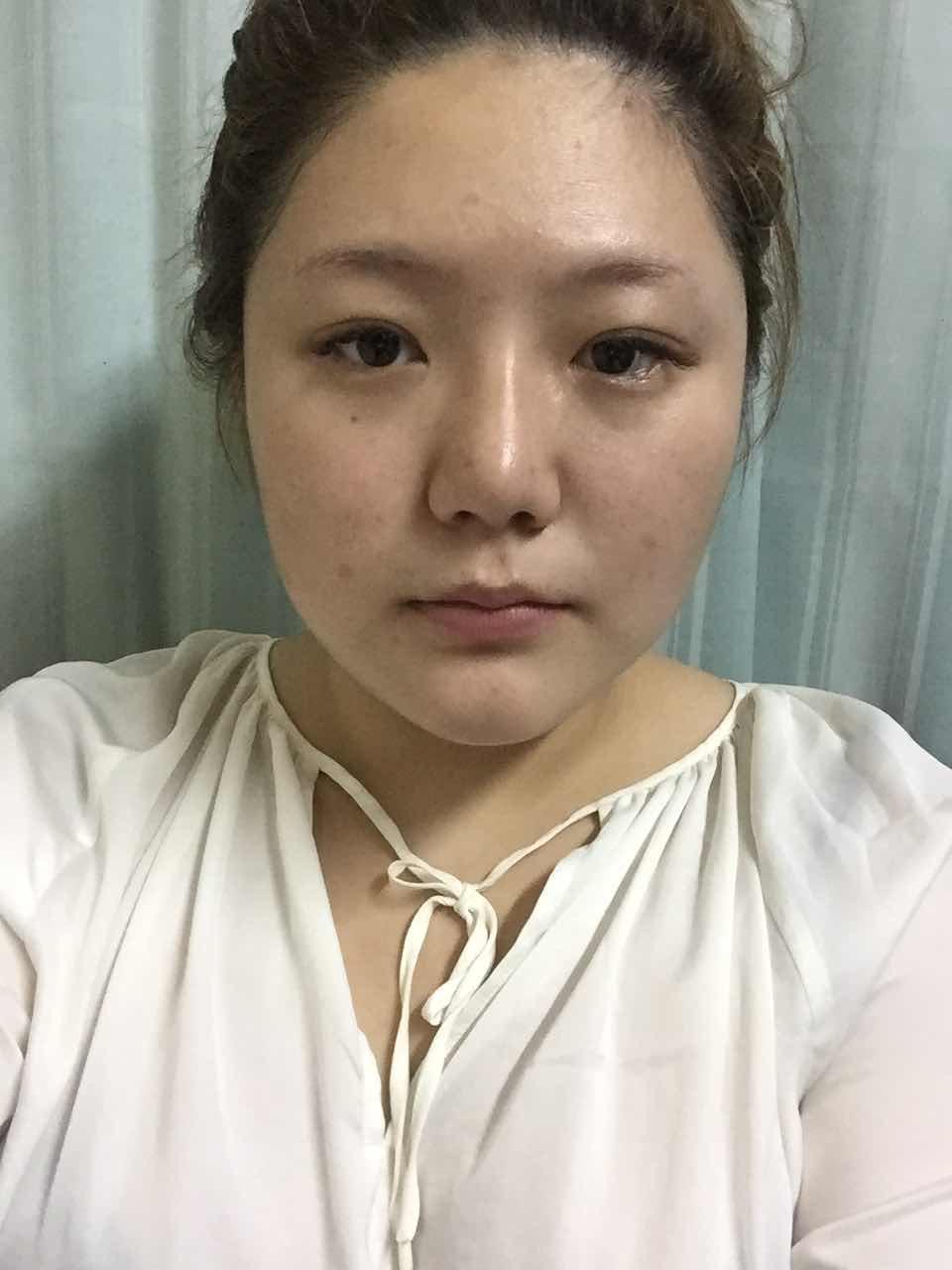 面部吸脂能幫我擺脫討厭的雙下巴嗎?覺得不美膩,之前做了鼻子和眼睛,馬上要做臉部抽脂和額頭填充。大家有神馬意見來來來