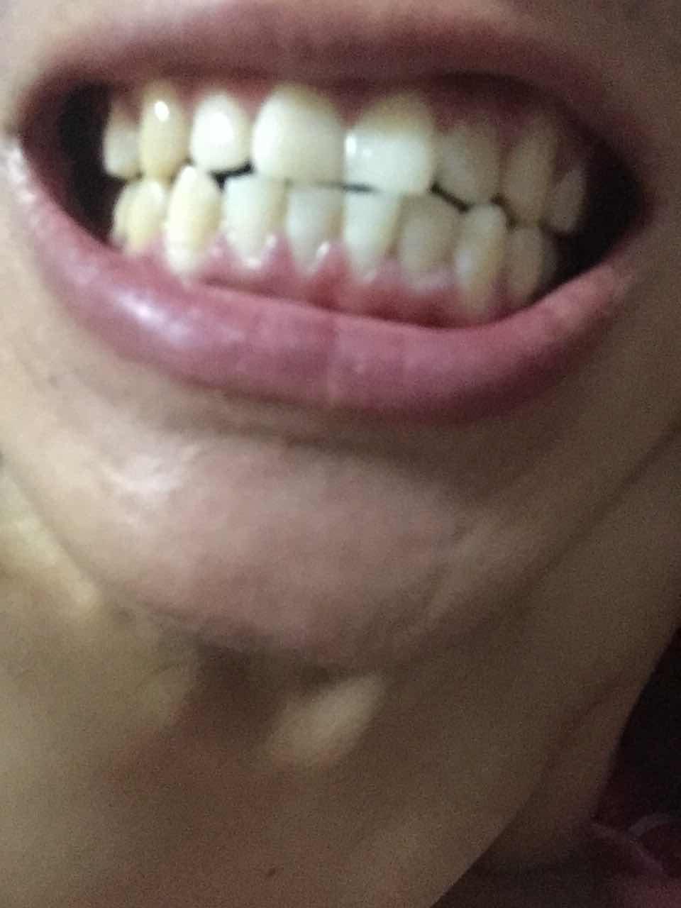 牙齿矫正的作用是什么?8千能 做个牙齿矫正!牙套吗现在要多少才能带牙套