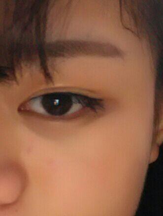 肿眼泡能做埋线双眼皮吗?就想问问这是要全切还是要怎么的双眼皮。这是今下午化妆弄的双眼皮贴