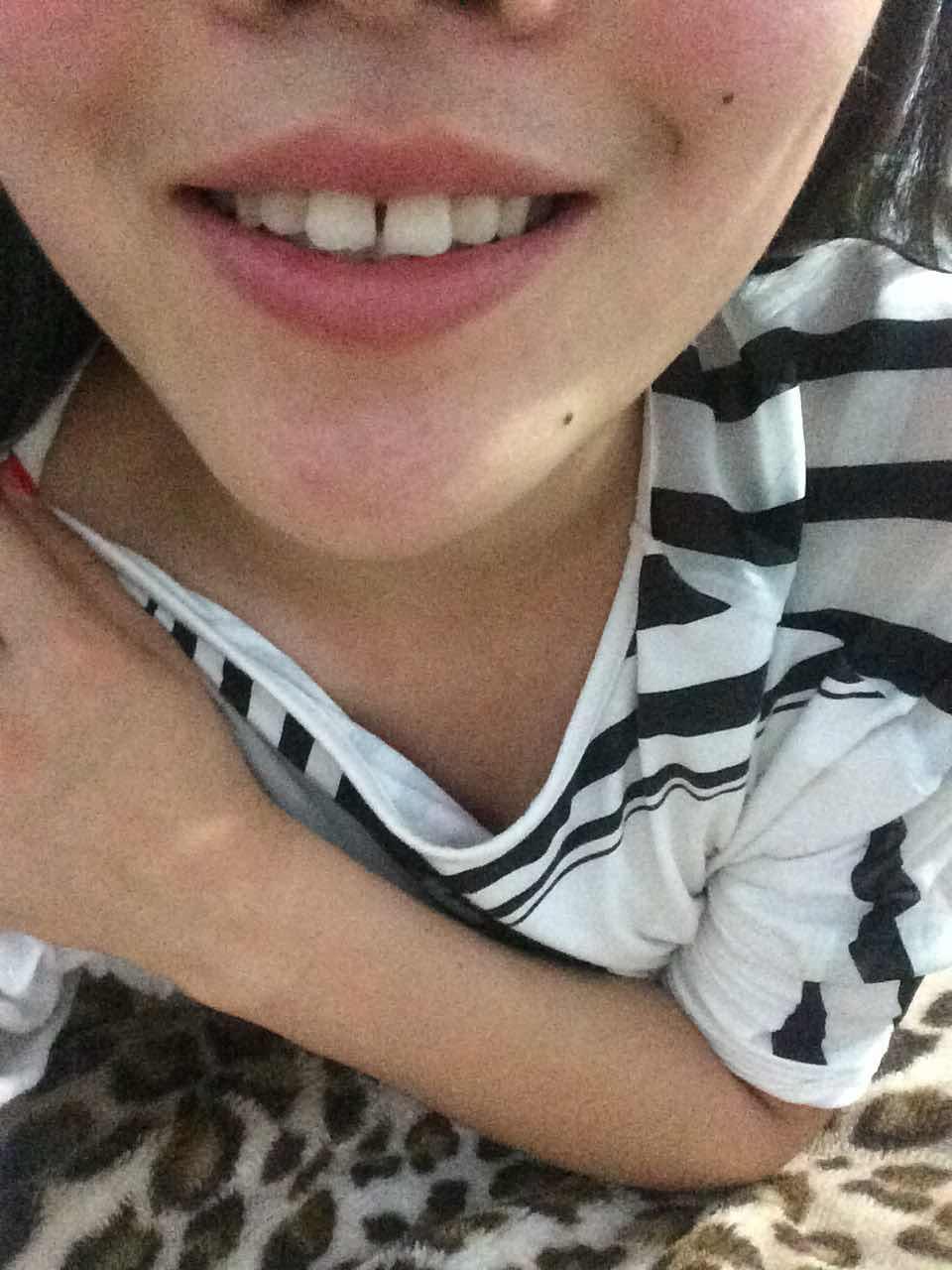 牙齿中间有缝怎么补比较好?牙齿有缝怎么办啊达人们,这个看起来好丑