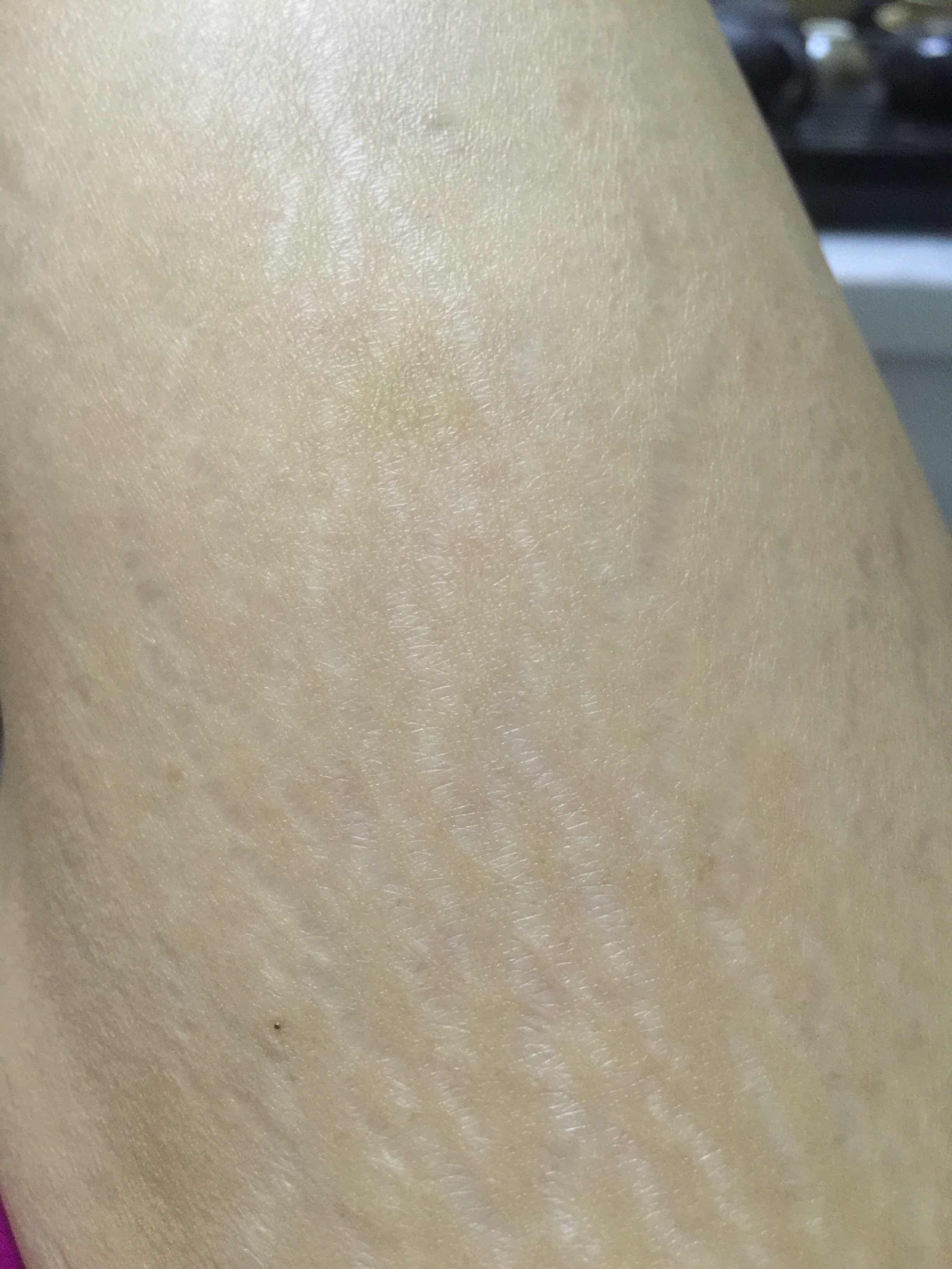 激光治疗妊娠纹有什么风险吗,不良反应什么的有没有?妊娠纹可以修复吗?