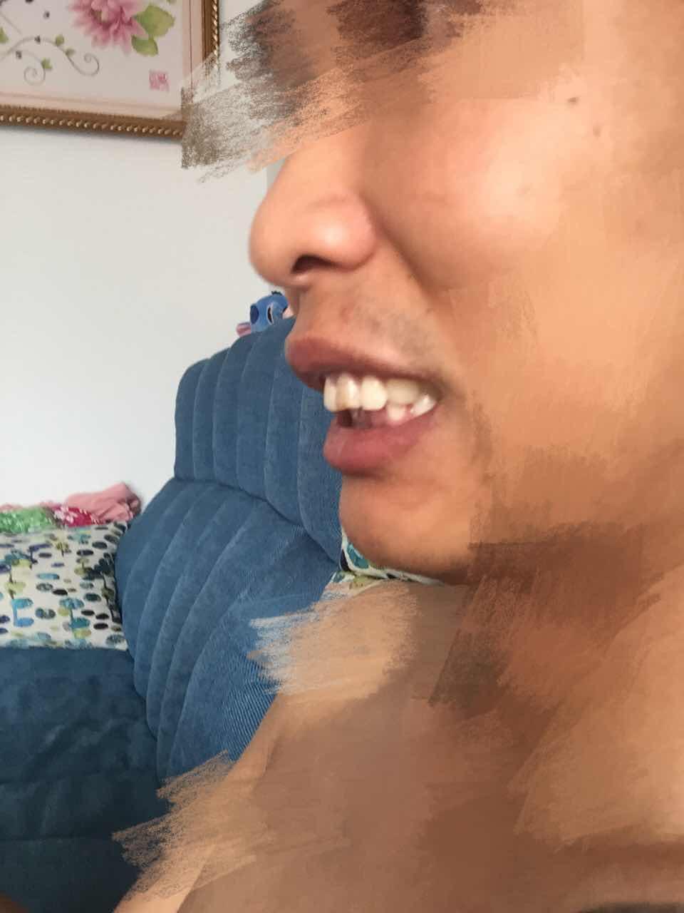 龅牙矫正的过程是怎样的你知道吗?这个情况的是需要做手术吗,还是只做牙齿就可以了。
