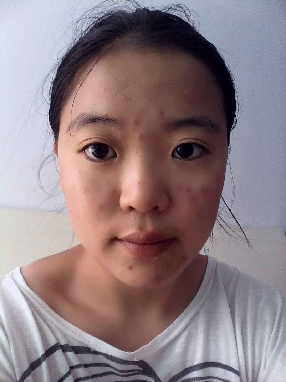 开眼角术后恢复需要多长时间?丑,皮肤也是特别的差,看蓝色深海传说电视剧里面说皮肤管理那个有用吗?