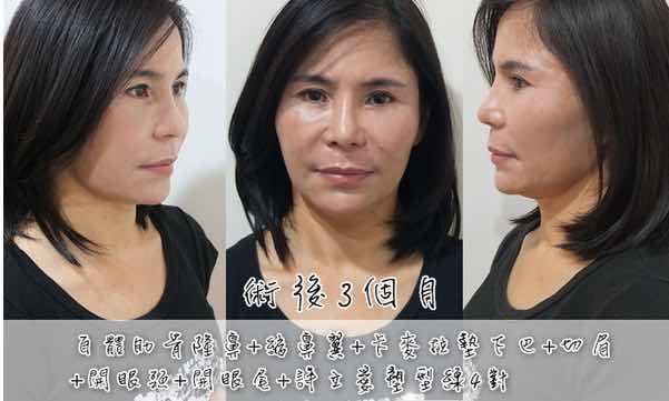 自体肋骨隆鼻保持多久,上了年纪的女人,仍然通过整形实现了不错的容貌,焕发出中年女人独有的韵味
