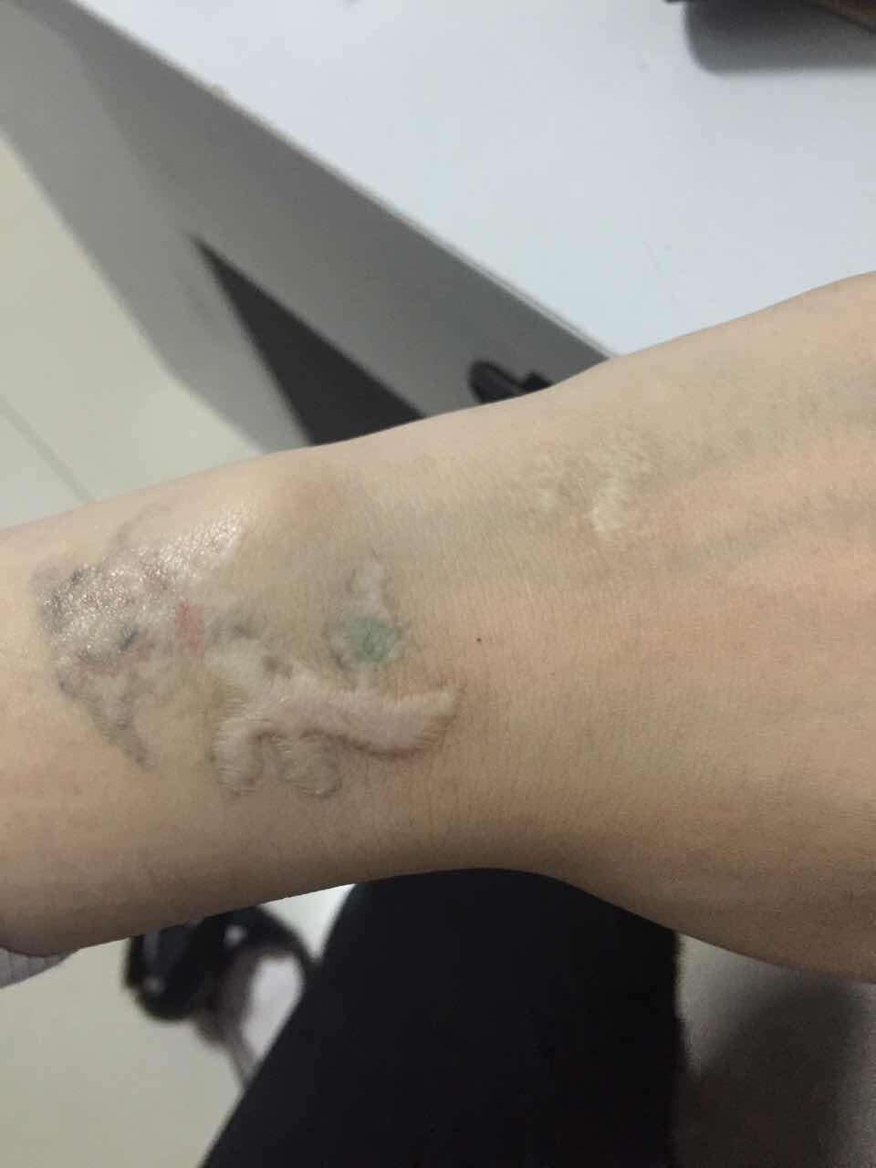 纹身疤痕怎么办,以前留的纹身疤痕,可以去的掉吗