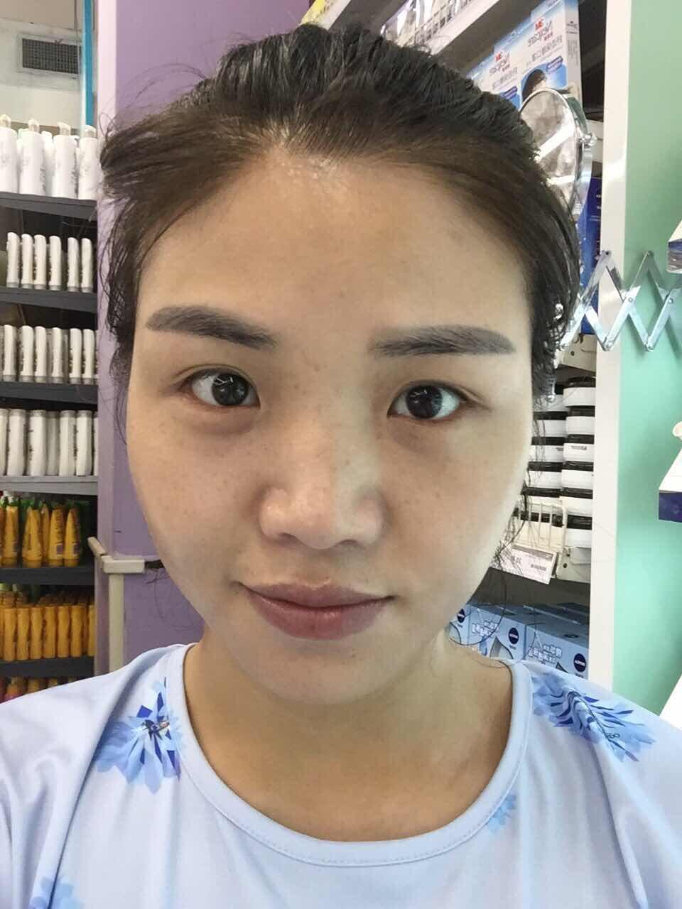 激光美白脸部多少钱,皮肤不好,想彻底的改善自己的皮肤