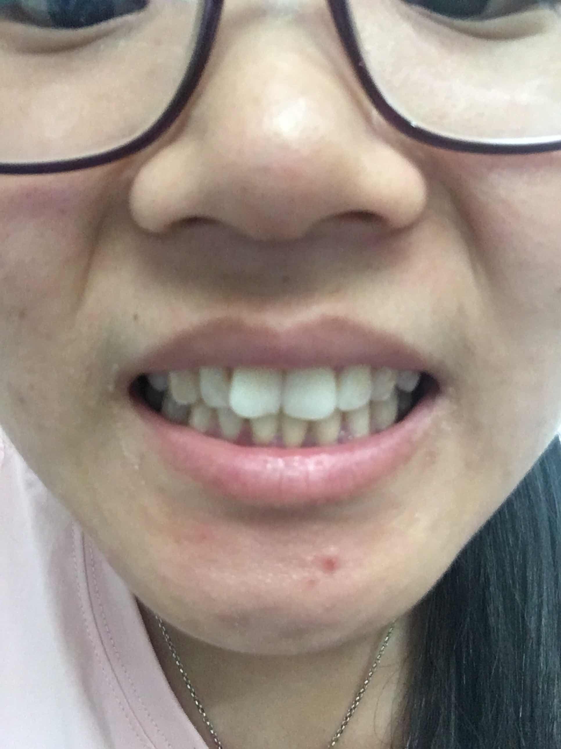 牙齿矫正一般多少钱,上排两颗大门牙有点重叠,下排正中间有颗假牙,该怎么矫正
