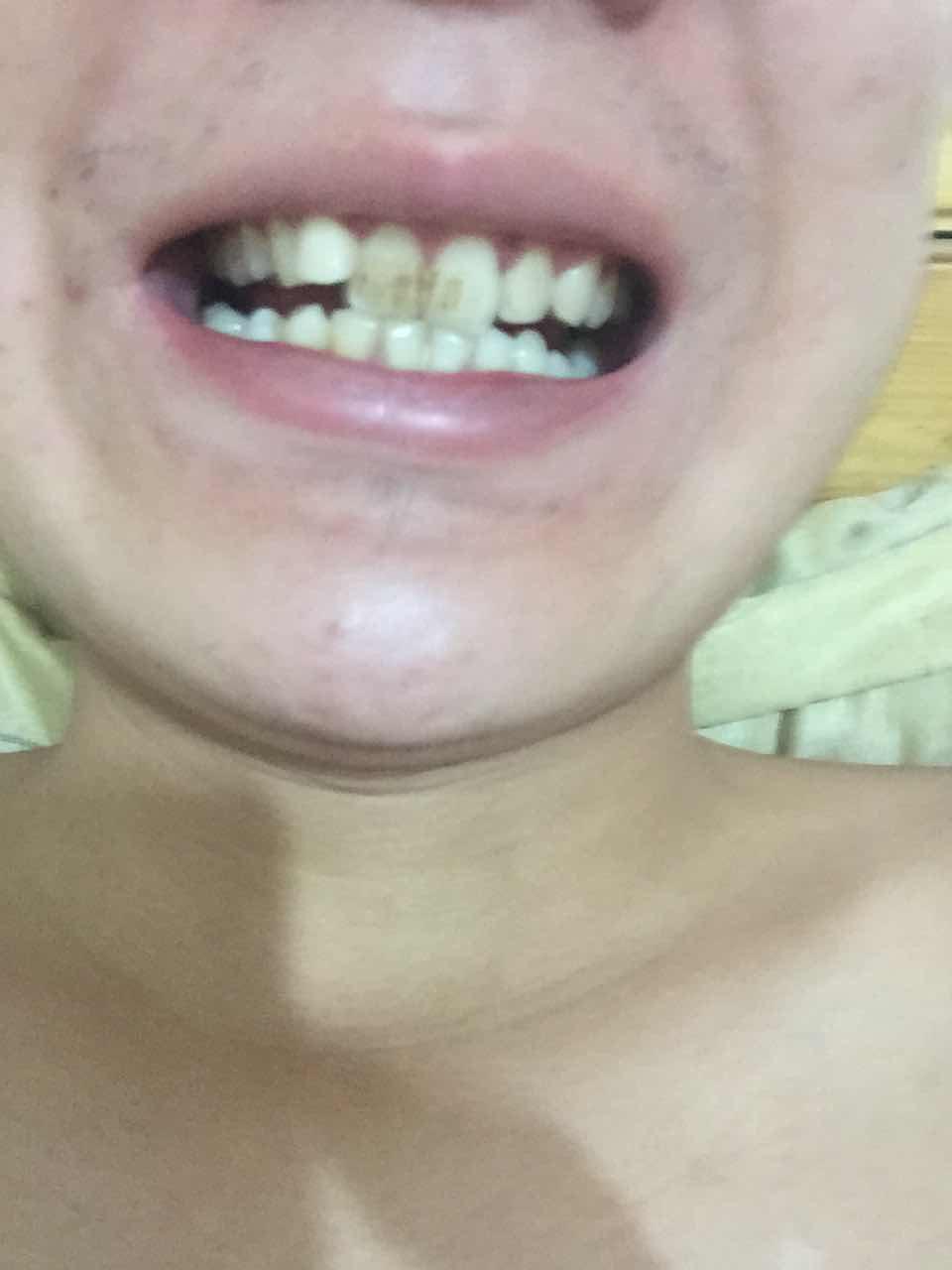 牙渍怎么去除,牙齿有牙渍,抽烟导致,有一颗龅牙,牙齿最内测的下面掉了个牙,我这种情况怎样才能不花太多时间整成下面这种看起来又好看颜色又白的牙齿